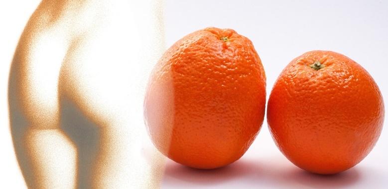 Die 6 Besten Mittel Gegen Cellulite